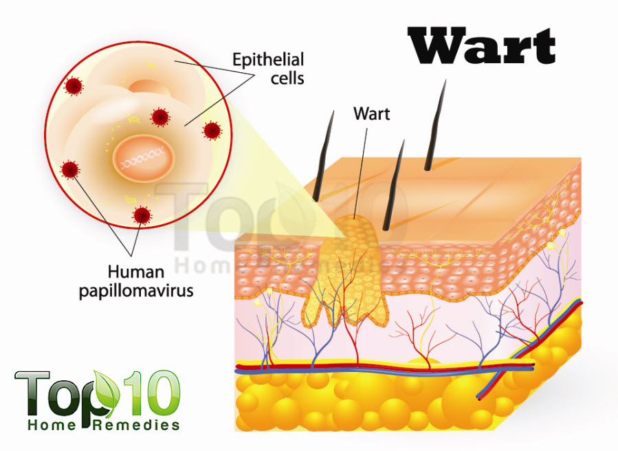 warts-diagram-opt